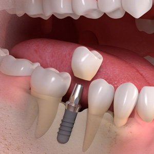 1 Implant-borne_single-tooth_treatment_03